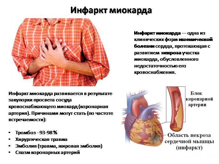 Пять неожиданных причин инфаркта