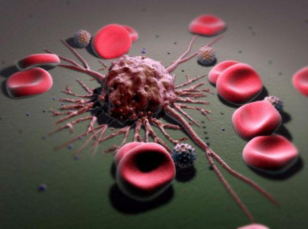 Фермент для профилактики метастазов рака.