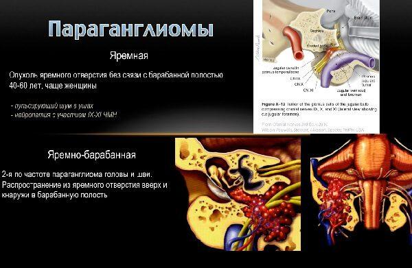 Параганглиома – симптомы и лечение, фото и видео.