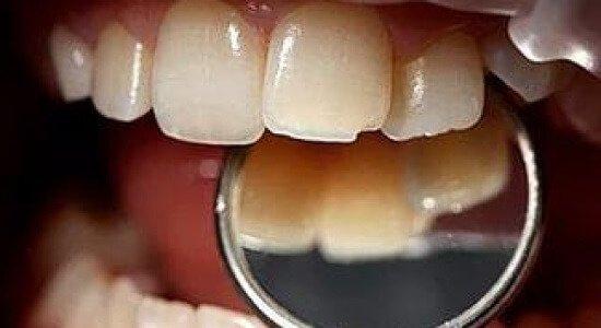 Вывих зуба – симптомы и лечение, фото и видео.