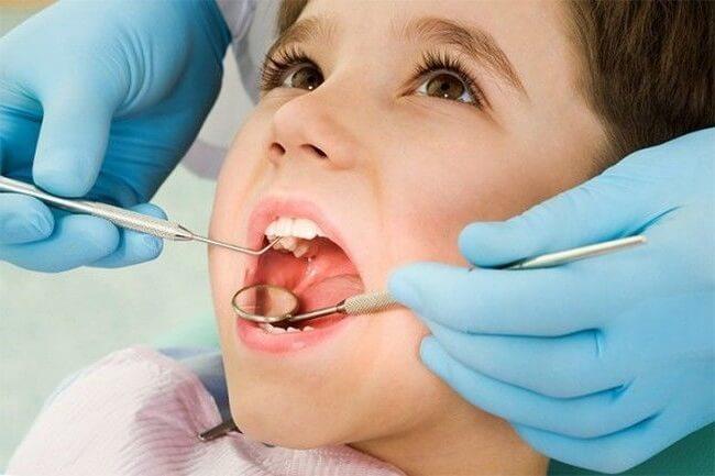 Вывих зуба – симптомы и лечение, фото и видео