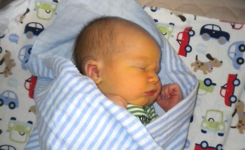 Желтуха у новорожденных – симптомы и лечение, фото и видео