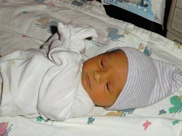 Желтуха у новорожденных – симптомы и лечение, фото и видео.
