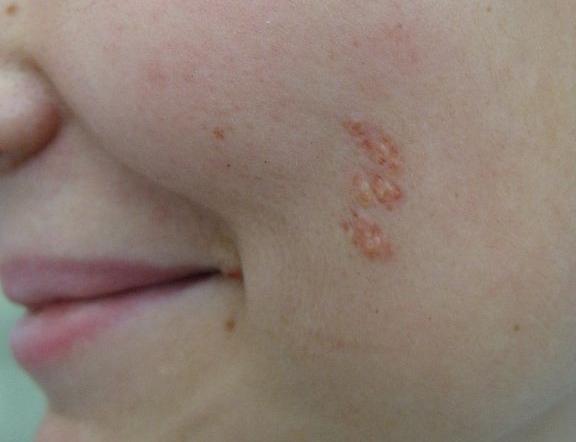 Комедоновый невус – симптомы и лечение, фото и видео