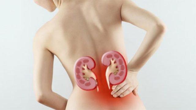 Женщины переносят почечные болезни хуже, чем мужчины