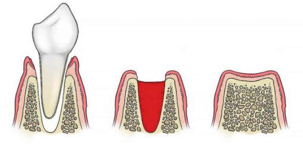 Сухая лунка после удаления зуба – симптомы и лечение, фото и видео.