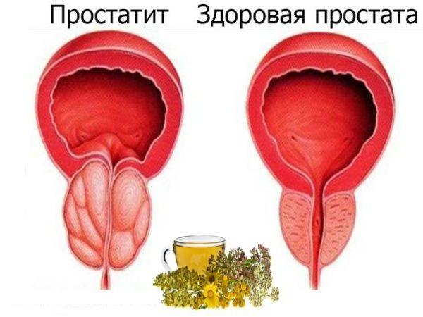 10 натуральных средств при простатите и аденоме.