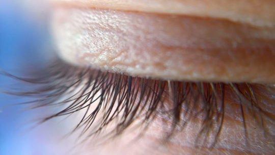 Трихиаз – симптомы и лечение, фото и видео.