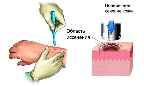 Дискератоз шейки матки - Гинекология