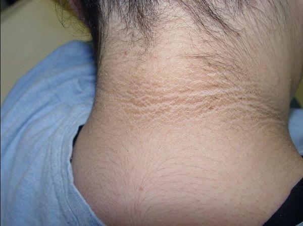 Черный акантоз – симптомы и лечение, фото и видео