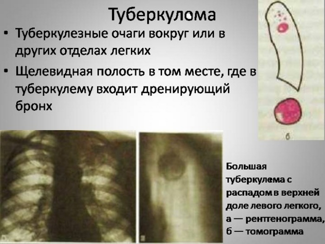 Симптомы и лечение туберкулеза легких народными средствами у взрослых и детей