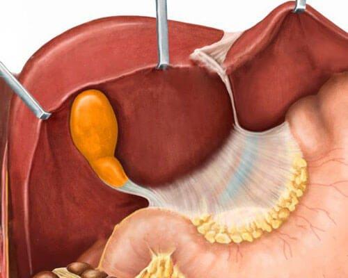 Дисхолия желчного пузыря – симптомы и лечение, фото и видео.