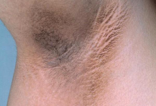 Черный акантоз – симптомы и лечение, фото и видео.