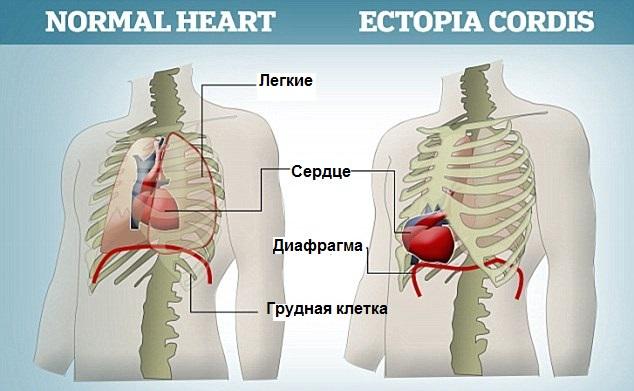Эктопия сердца – симптомы и лечение, фото и видео
