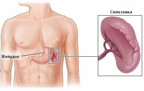 Инфаркт селезенки – симптомы и лечение, фото и видео
