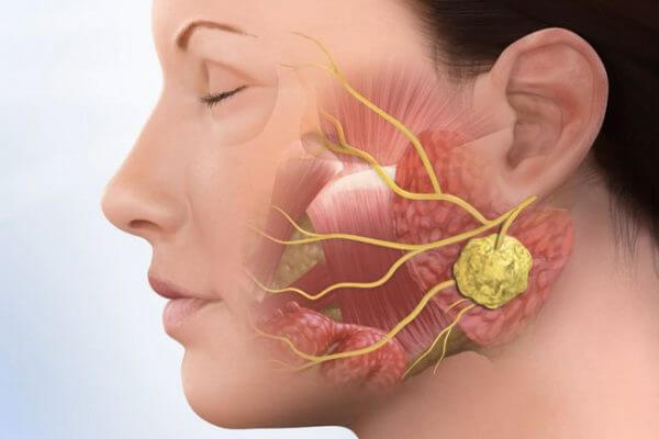 Слюннокаменная болезнь – симптомы и лечение, фото и видео