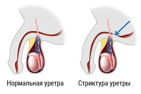 Стриктура уретры – симптомы и лечение, фото и видео