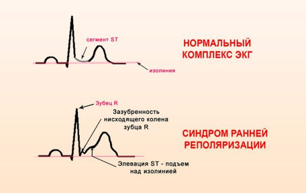 Синдром ранней реполяризации желудочков – симптомы и лечение, фото и видео.