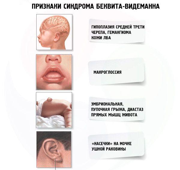 Синдром Беквита-Видемана – симптомы и лечение, фото и видео