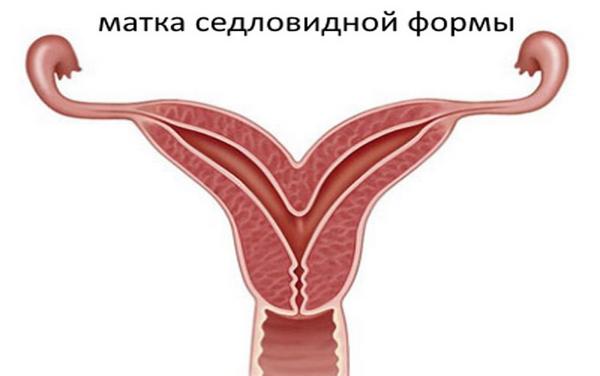 Седловидная матка – симптомы и лечение, фото и видео
