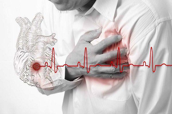 Профилактика инфаркта при плохой наследственности.