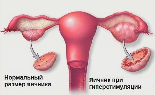 Гиперстимуляция яичников – симптомы и лечение, фото и видео