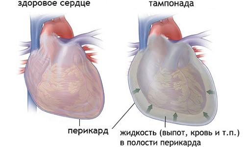 Тампонада сердца – симптомы и лечение, фото и видео