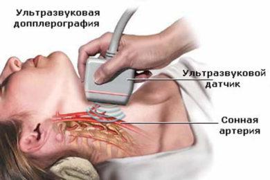 Венозная дисгемия – симптомы и лечение, фото и видео