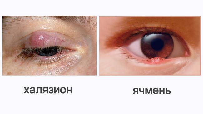 Халязион – симптомы и лечение, фото и видео