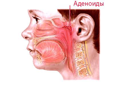 Гипертрофия аденоидов – симптомы и лечение, фото и видео