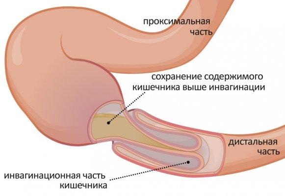 Инвагинация кишечника – симптомы и лечение, фото и видео
