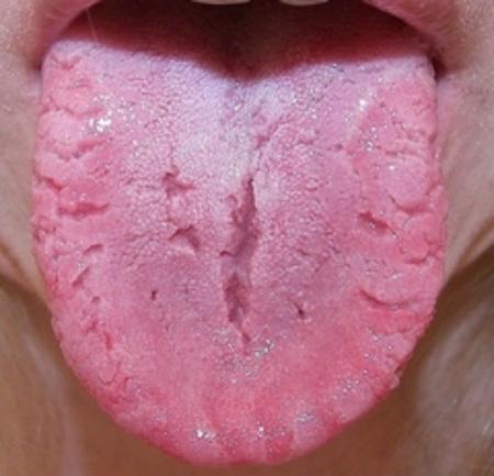 Складчатый язык – симптомы и лечение, фото и видео