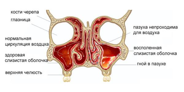 Гаймороэтмоидит – симптомы и лечение, фото и видео