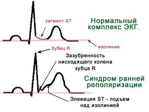 Синдром ранней реполяризации желудочков – симптомы и лечение, фото и видео