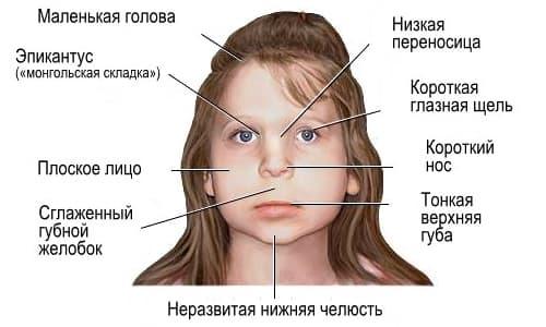 Фетальный алкогольный синдром – симптомы и лечение, фото и видео