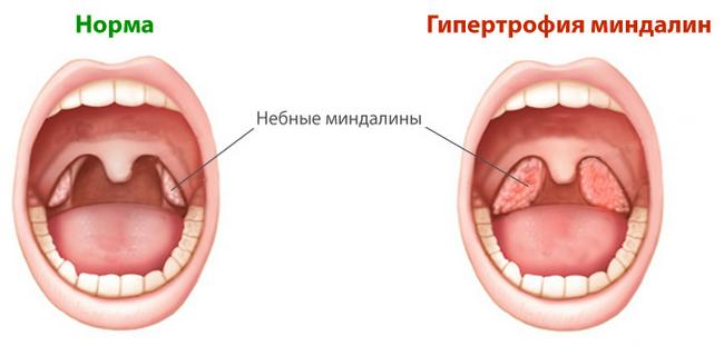 Гипертрофия миндалин – симптомы и лечение, фото и видео