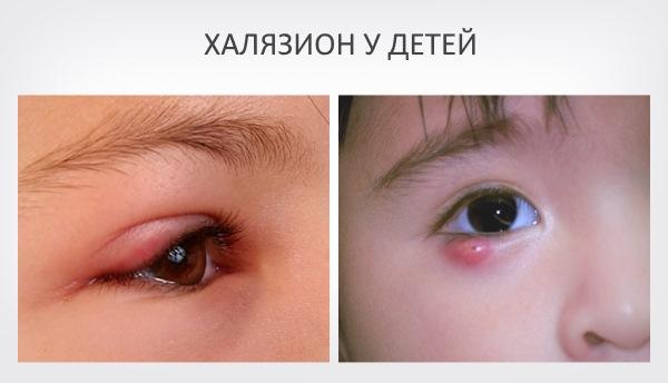 Халязион у ребенка – симптомы и лечение, фото и видео