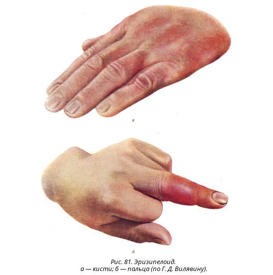 Эризипелоид – симптомы и лечение, фото и видео