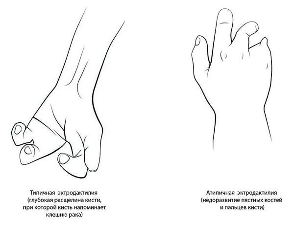 Эктродактилия – симптомы и лечение, фото и видео
