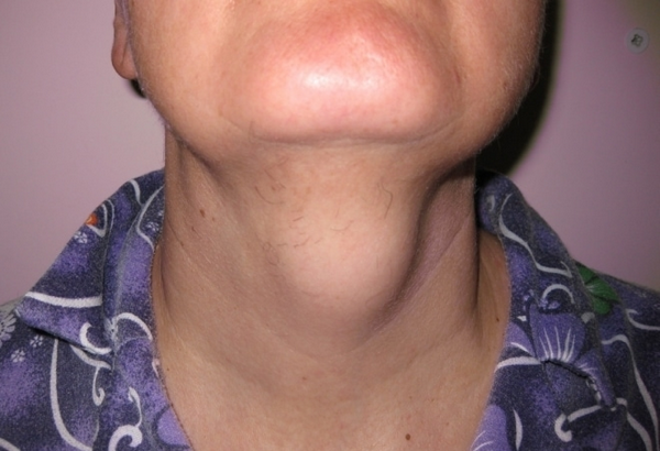 Срединная киста шеи – симптомы и лечение, фото и видео