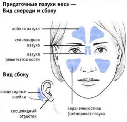 Гемисинусит – симптомы и лечение, фото и видео