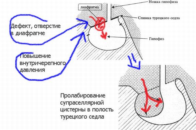 Синдром пустого турецкого седла – симптомы и лечение, фото и видео