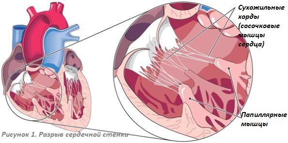 Разрыв сердца – симптомы и лечение, фото и видео