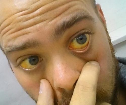 Гипербилирубинемия – симптомы и лечение, фото и видео