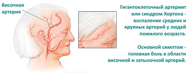 Артериит – симптомы и лечение, фото и видео