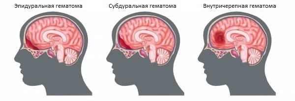 Гематома головного мозга – симптомы и лечение, фото и видео