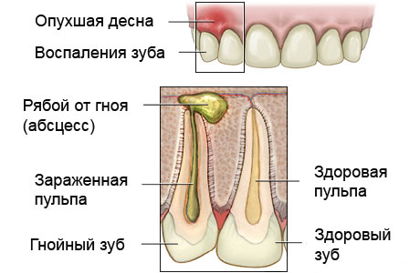 Абсцесс зуба – симптомы и лечение, фото и видео