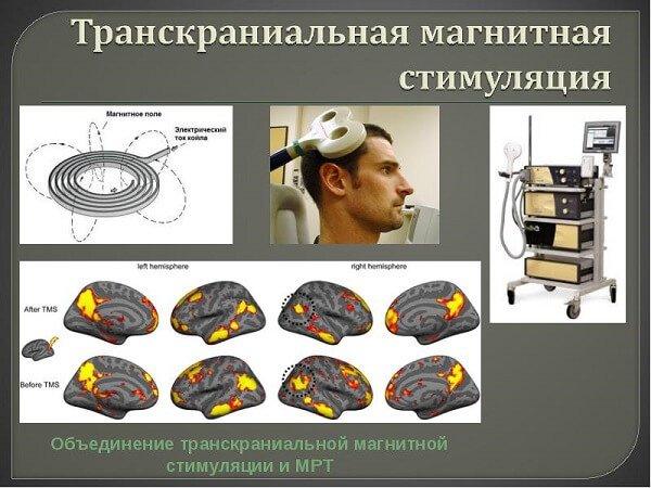 Транскраниальная магнитная стимуляция ТМС эффективна при инсульте