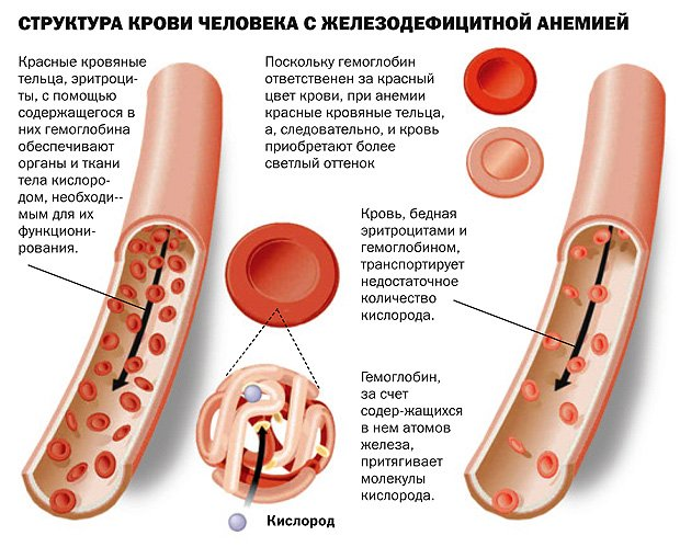 Как избавиться от анемии за несколько дней