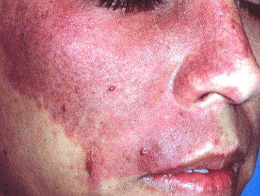 Ангиоматоз – симптомы и лечение, фото и видео.